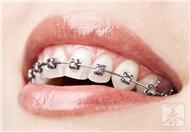 带牙套多久才有效果?
