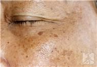 传染性软疣严重吗?治疗方法有哪些