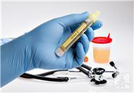 尿毒症尿血怎么办?这样治疗最正确