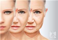 仰睡可预防脸部皱纹抗衰老