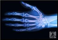 骨髓炎能治好吗