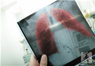 毛细支气管肺炎