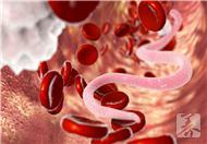 胆道蛔虫病