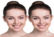 毛囊角质化