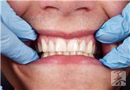 牙龈出血老人不可小视的疾病