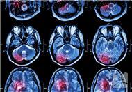 如何治疗脑出血后头痛