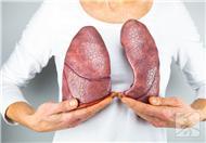 肺上有肿瘤怎么办