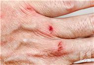 腋下疤痕修复治疗