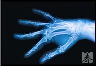 骨髓增生異常綜合征的注意事項