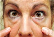 眼袋怎么形成的,自制小黄瓜眼膜祛除眼袋