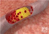 如何区分血管瘤和胎记