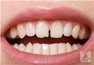 9大习惯毁你牙齿,保护牙齿帮你改掉坏习惯