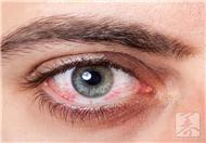 角膜炎和结膜炎的区别是什么