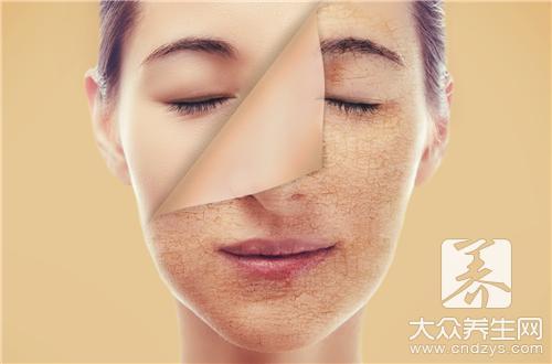面部皮肤干燥起皮刺痛怎么办