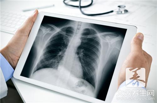 结咳性胸膜炎传染给别人吗