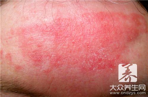 How is wintersweet rash treated