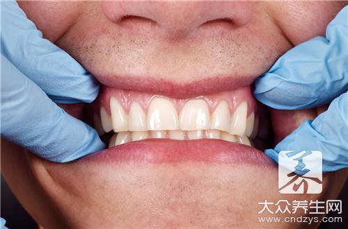 牙龈出血的偏方