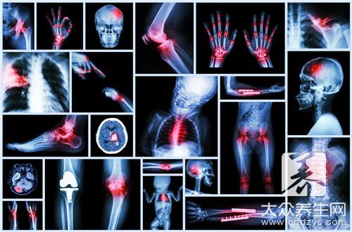 跖骨骨折后遗症有哪些