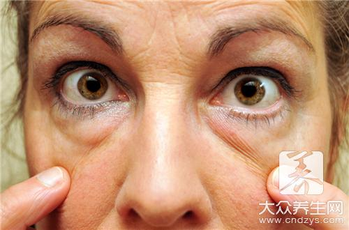 帮助你消除眼袋的三个小方法