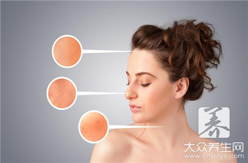 How does dispel acne imprint