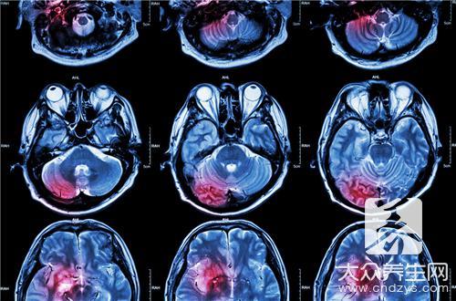 老人脑出血能治疗的好吗