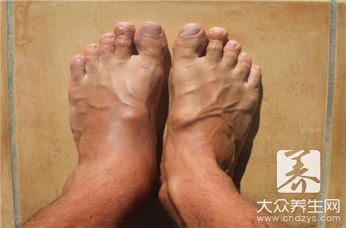 脚上磨的硬疙瘩怎么办