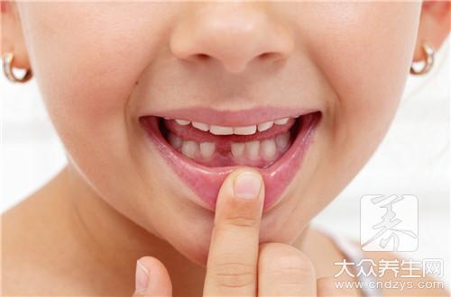 Can door slit between the teeth fill