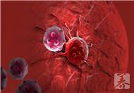 人类有望饿死癌细胞
