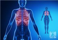 肋间神经痛是什么原因?有哪些症状
