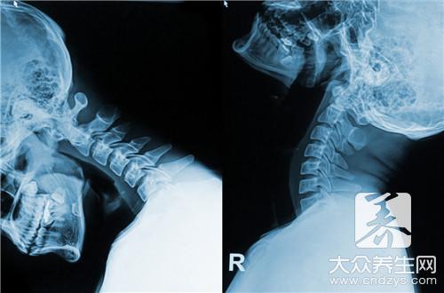 颈椎第一节凸出怎么办