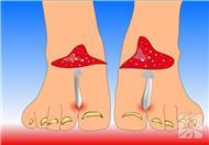 脚气病是得怎么来的?