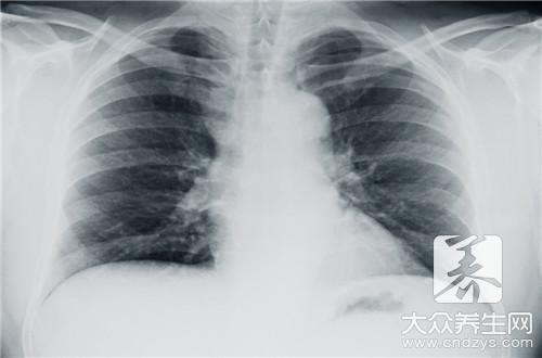胸腔里有积水怎么治疗(1)