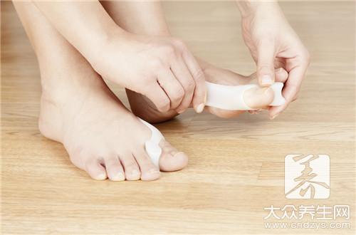 拇指外翻的正确治疗方法