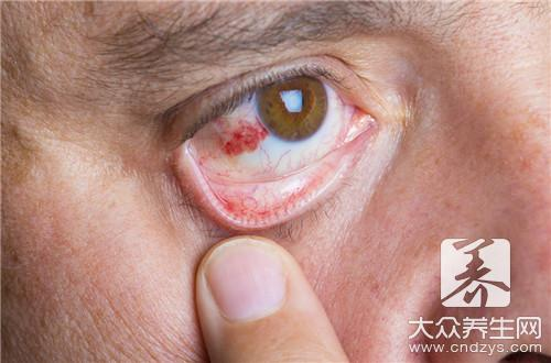 Go up gall of eyelid eye end
