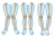 o形腿如何纠正才能变直?
