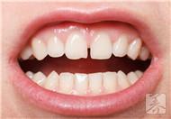 牙齿喷砂抛光区别有哪些?