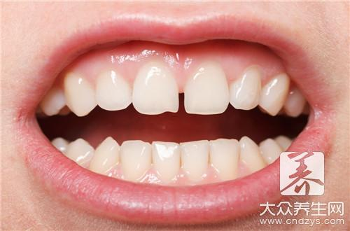 Small doohickey of how beautiful white tooth