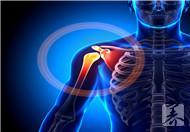 肩周炎的症状和治疗方法