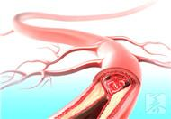 心血管狭窄治疗方法都有哪些