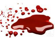血虚怎么调理最有效?不妨试试这样做