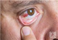 眼脸肿是什么原因?怎么治疗