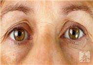 粘双眼皮的危害有哪些呢?