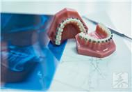 下颌骨囊肿的早期症状,治疗方法