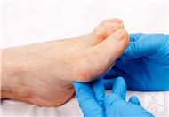 病毒疣长在脚上怎么治比较好