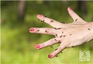 螞蝗鉆進人體怎么辦