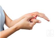 右手手指不灵活