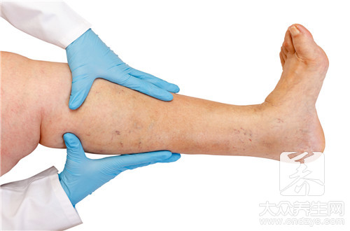 Phlebitis belongs to which section office