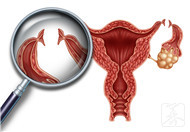 输卵管炎能治好吗?