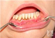 拔牙后发烧是怎么回事