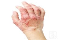 湿疹退皮后多久能好